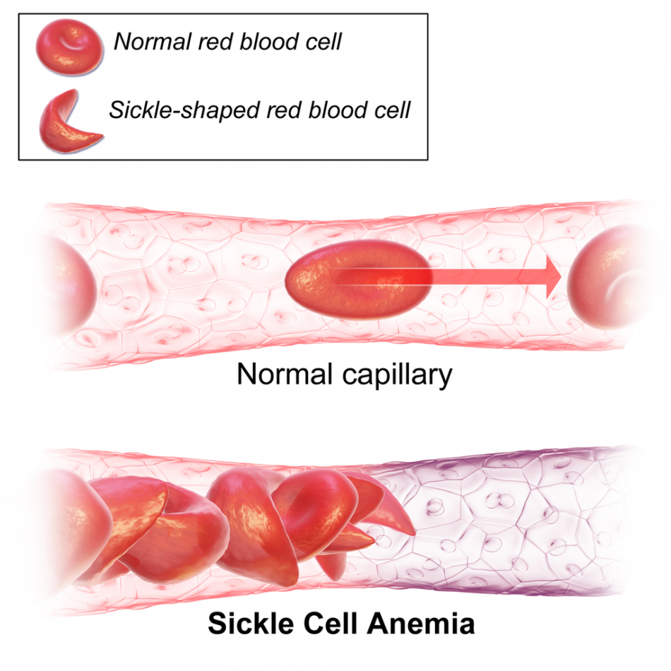 Comfort Okolo, Sickle cell